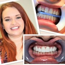 Patient before, during, and after teeth whitening