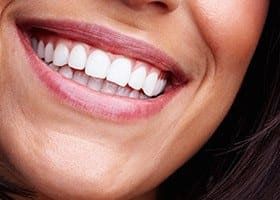 Closeup of healthy teeth and gums