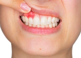 Patient with inflamed and reddened gum tissue