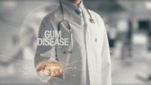 gum disease graphic
